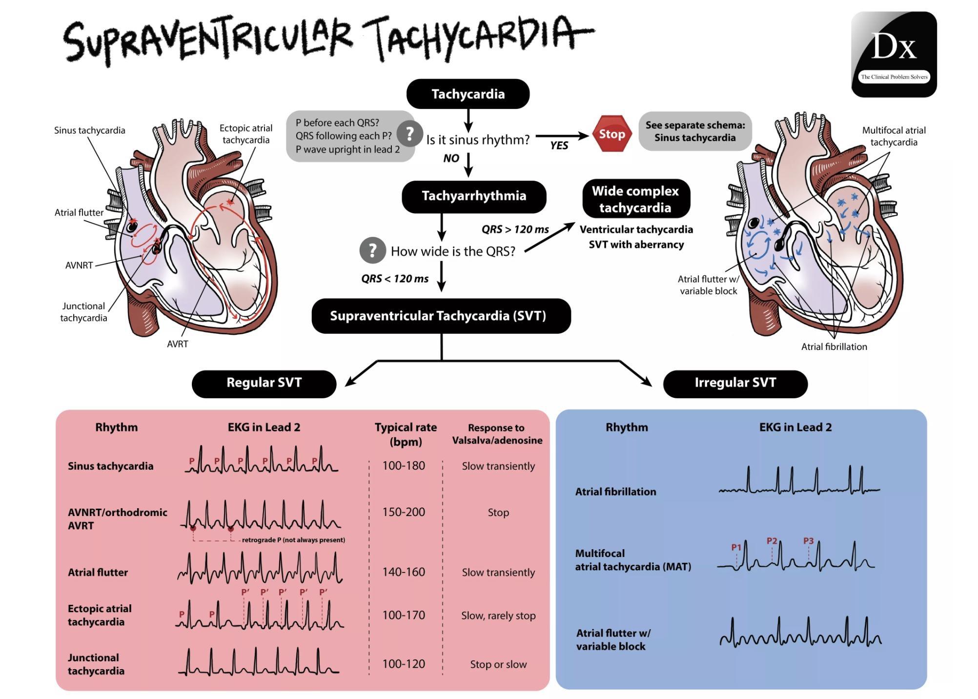 Supraventricular Tachycardia Supraventriculartachycardia Svt Ekg Cardiology Diagnosis