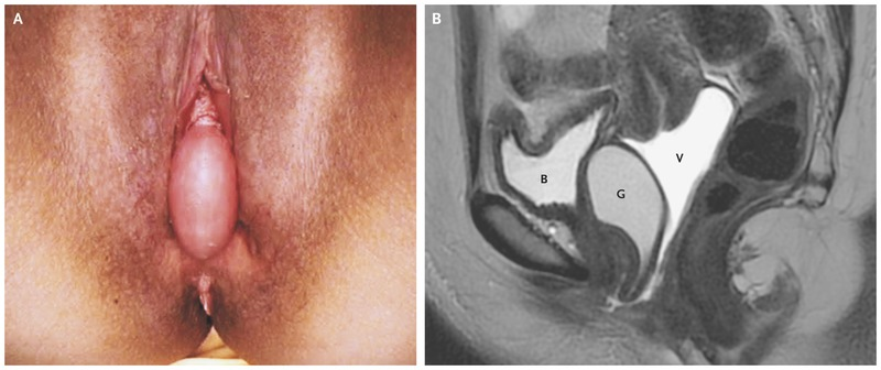 Unusual case of posterior vaginal wall cyst