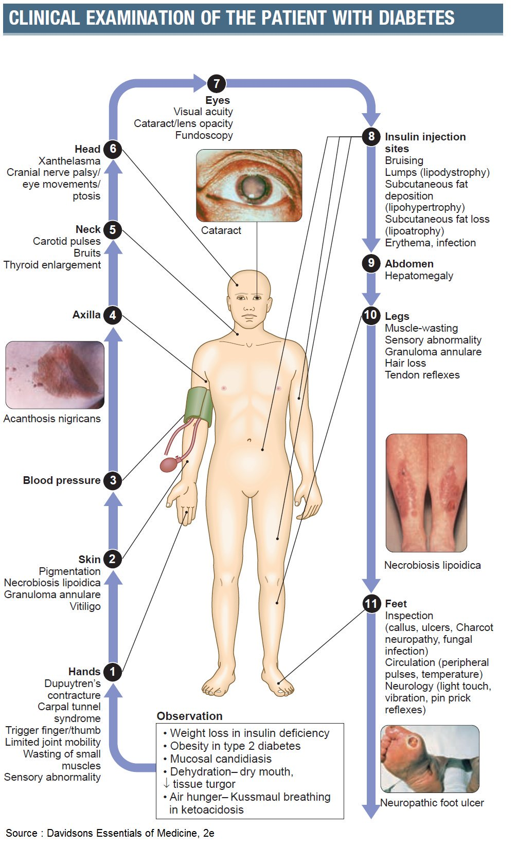 Clinical Examination of the Patient with Diabetes