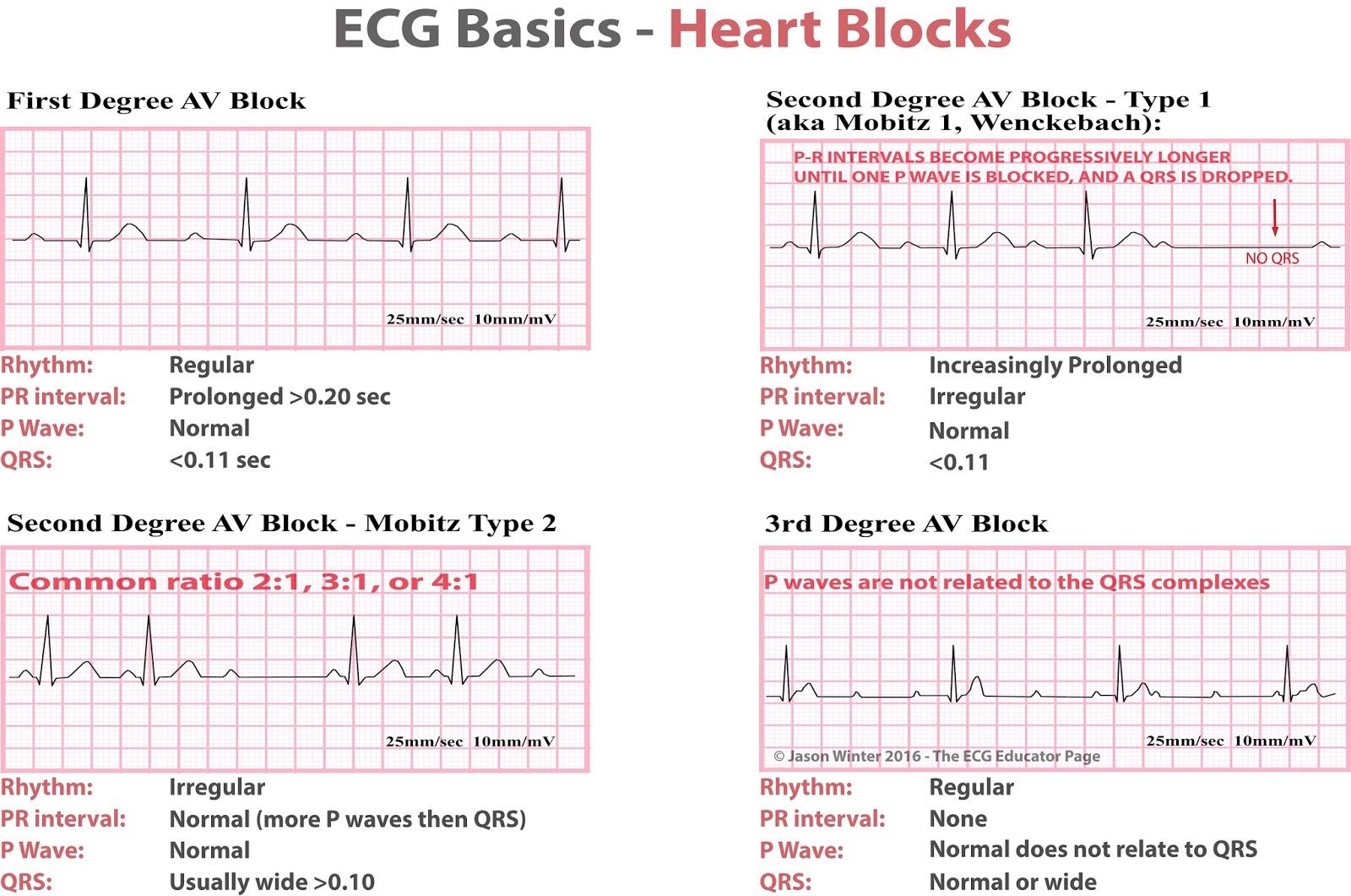 Heart Block Ekg Diagram Wiring Electricity Basics 101 Ecg Blocks Diagnosis Cardiology Medstudent Rh Grepmed Com Different Types Of Abnormal