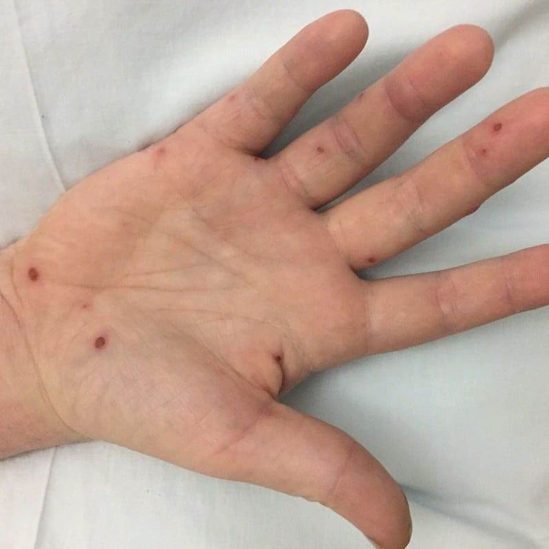 Osler Nodes In Infective Endocarditis Dr Andre Grepmed Osler's nodes result from the deposition of immune complexes.citation needed the resulting inflammatory response leads to swelling, redness, and pain that characterize these lesions. osler nodes in infective endocarditis