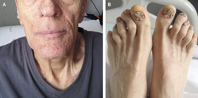 Summary -> Tuberous Sclerosis Dermnet Nz