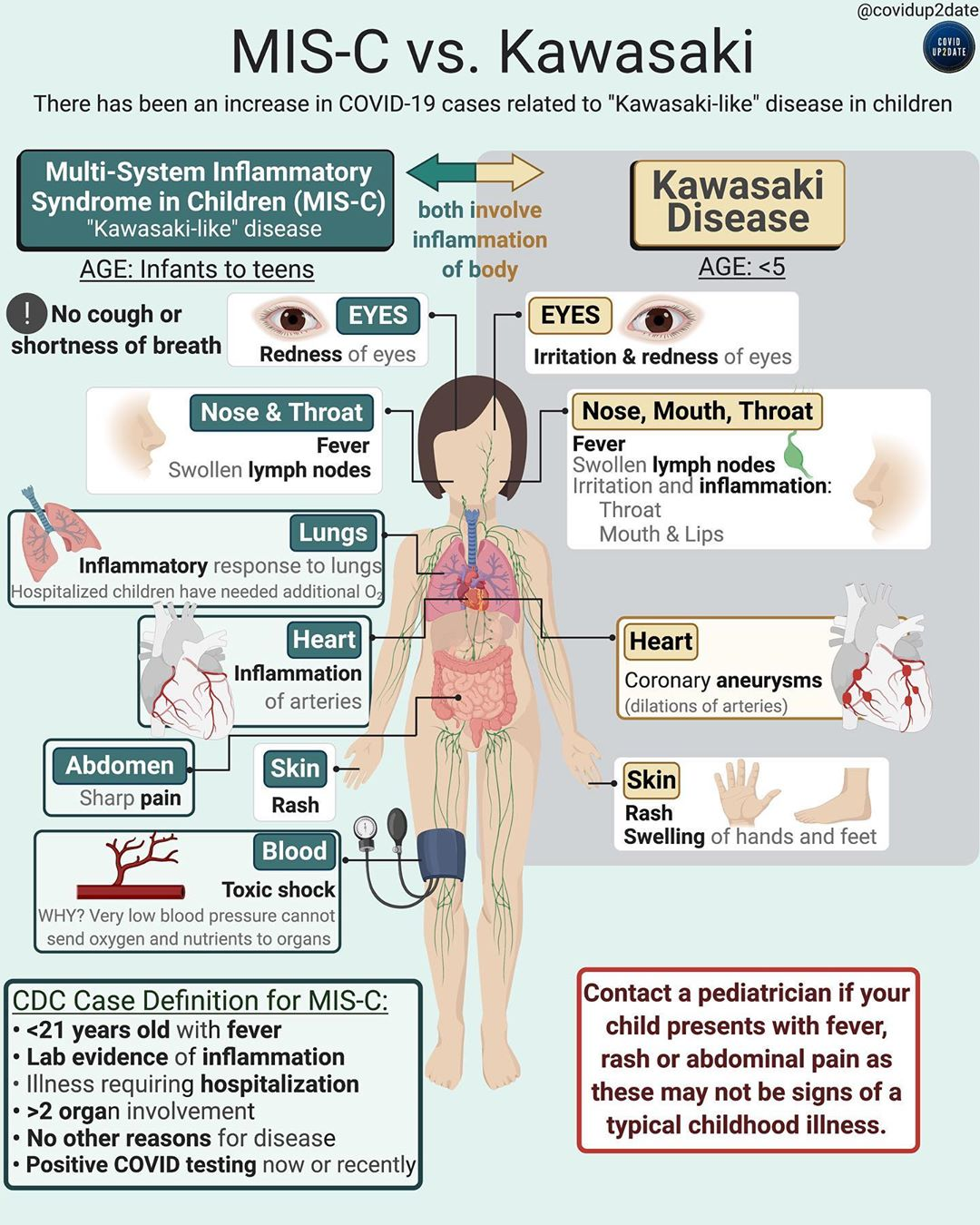 https://img.grepmed.com/uploads/9070/pediatrics-coronavirus-syndrome-comparison-misc-original.jpeg