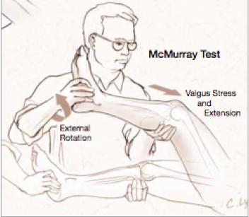 Mc murray test knie